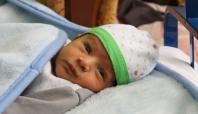Bebekte göz sulanmasına dikkat